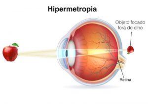 hipermetropia (1)