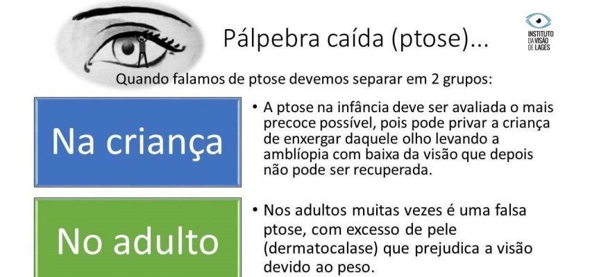 A cirurgia plástica ocular é uma especialidade da medicina oftalmológica.  O cirurgião oculoplástico é um médico oftalmologista com especialização em plástica das pálpebras, sistema lacrimal, órbita e áreas anexas. Ou seja, ele é capaz de diagnosticar e tratar anormalidades dessas regiões dos olhos.  A ptose palpebral é a queda da pálpebra superior, podendo ser de origem congênita ou adquirida. O normal é que a pálpebra superior cubra apenas de 1 a 2 mm da porção superior da córnea. A queda ou ptose da pálpebra, além do comprometimento estético, pode diminuir o campo de visão.  O oftalmologista especialista em Plástica Ocular realiza o tratamento.  O Instituto da Visão de Lages tem a Dra. Karina Ariane Gaio, médica oftalmologista, Fellow em Plástica Ocular, Órbita e Vias Lacrimais.